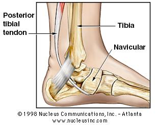 Tibial1